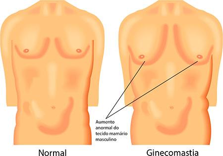 causas ginecomastia masculina