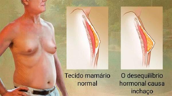 ginecomastia masculina sintomas